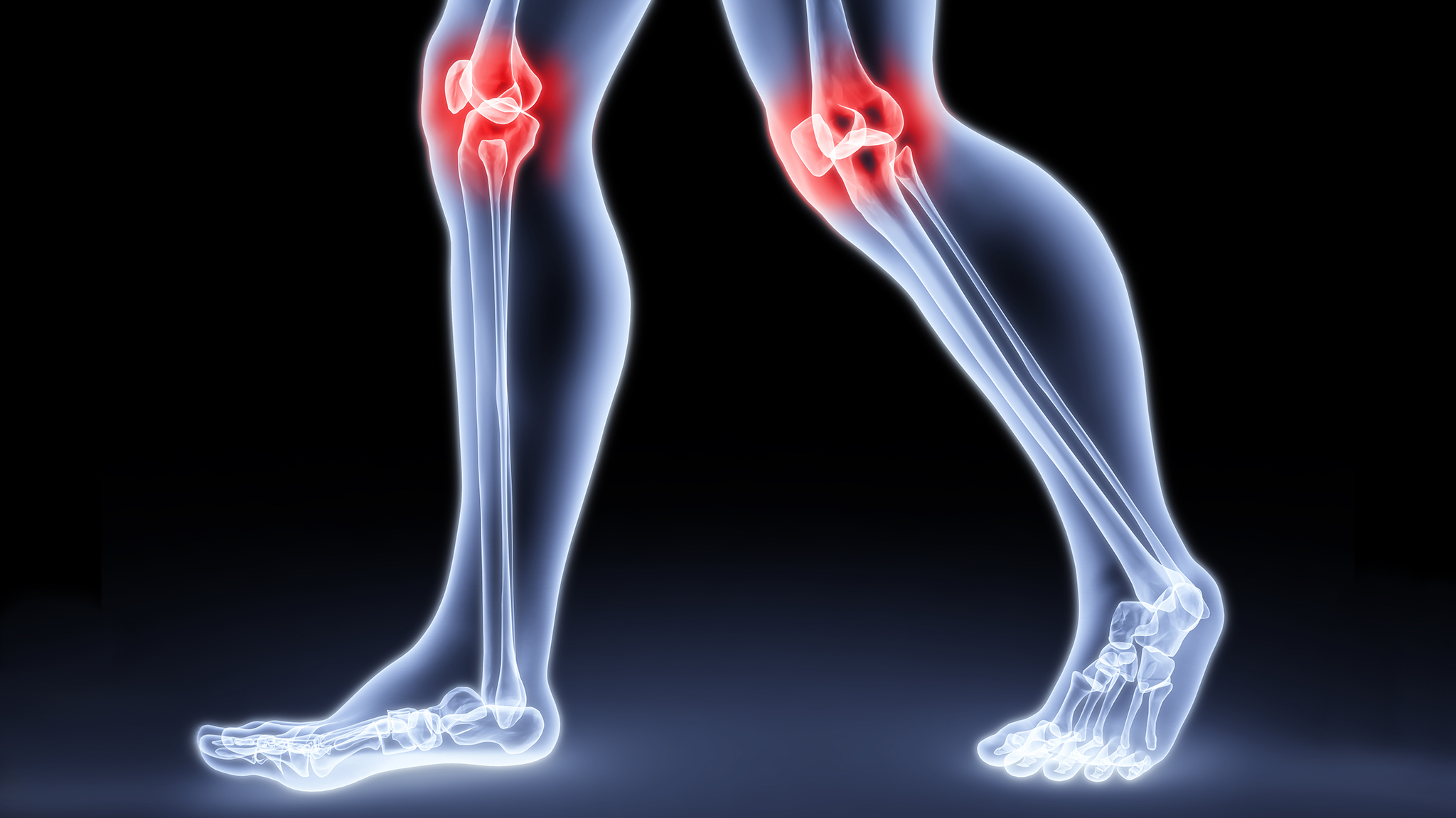 Как лечить артроз коленного сустава в домашних 47